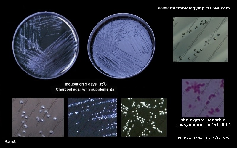Bordetella pertussis on agar plate