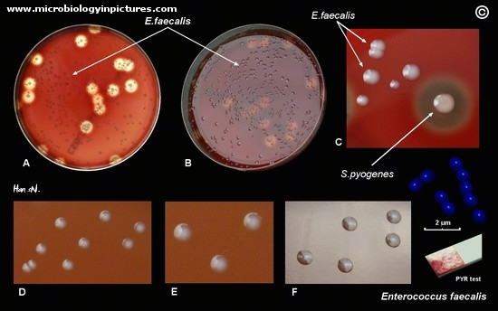 Enterococcus faecalis on blood agar plate