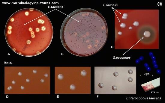 enterococcus faecalis - photo #44