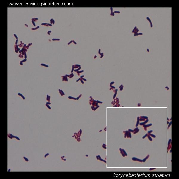 Cistitis y hematuria por Corynebacterium striatum A