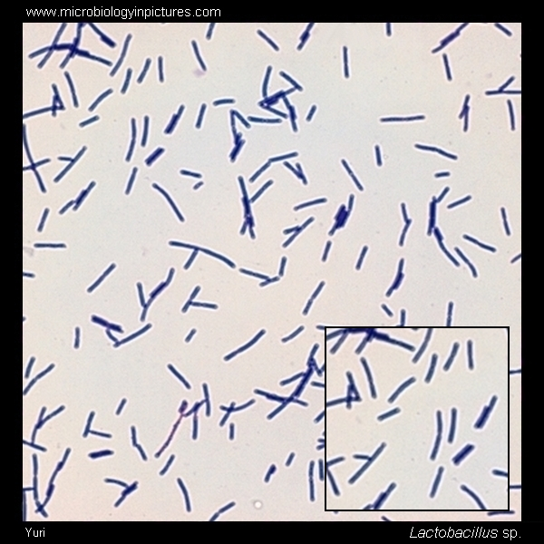 Lactobacillus Gram-stain And Cell Morphology