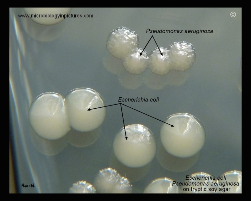 E coli plate morphology