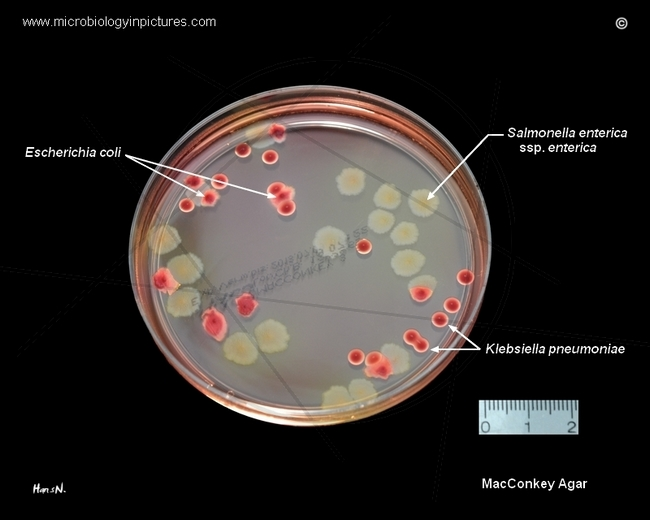 E coli plate morphology