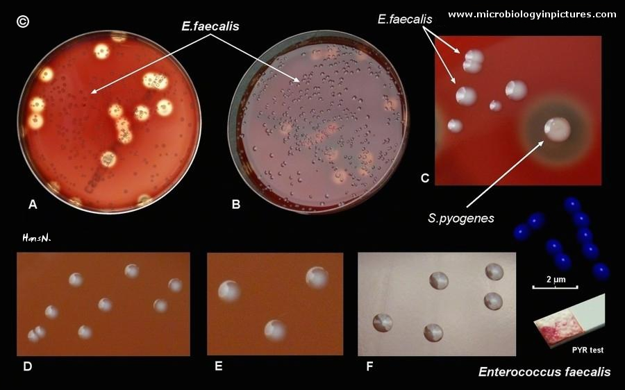 colonies of Enterococcus faecalis on blood agar